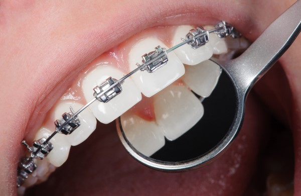 cleaning-teeth-with-braces